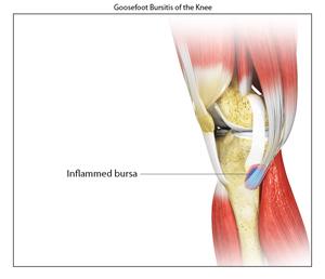 Goosefoot bursitis denver co knee surgeon canada colorado us goosefoot bursitis of the knee ccuart Choice Image