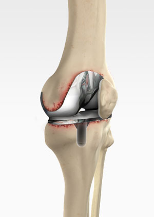 Revision Knee Replacement Colorado | Total Knee Replacement