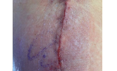 Wound with the mesh tape in place. The mesh should stay securely on the incision for 10-14 days.