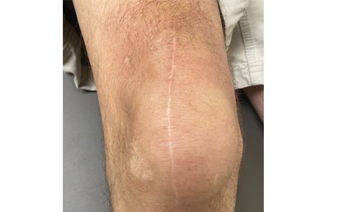 Knee wound at 18 months post-op